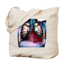 Heart pacemaker, X-ray Tote Bag