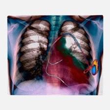 Heart pacemaker, X-ray Throw Blanket