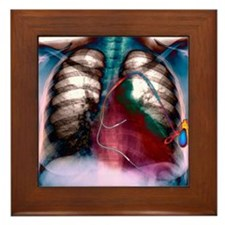 Heart pacemaker, X-ray Framed Tile