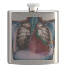 Heart pacemaker, X-ray Flask
