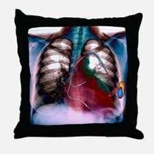 Heart pacemaker, X-ray Throw Pillow