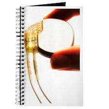 Heart pacemaker Journal