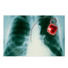 Heart pacemaker X-ray Postcards (Package of 8)