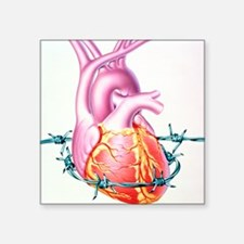 "Heart disease Square Sticker 3"" x 3"""