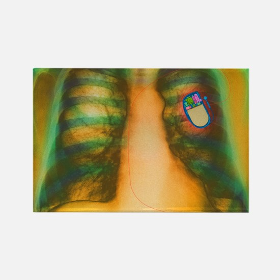 Heart pacemaker, X-ray Rectangle Magnet