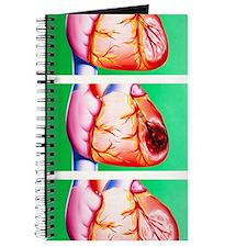 Heart disease: ischaemia, infarction, peri Journal