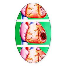 Heart disease: ischaemia, infarctio Decal
