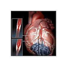 "Heart ischaemia Square Sticker 3"" x 3"""
