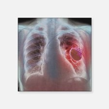 """Heart pacemaker, X-ray Square Sticker 3"""" x 3"""""""