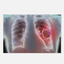 Heart pacemaker, X-ray Postcards (Package of 8)