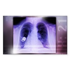 Heart pacemaker, X-ray Decal