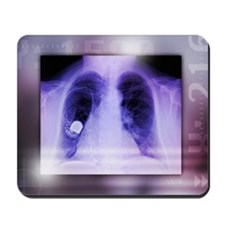 Heart pacemaker, X-ray Mousepad