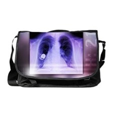 Heart pacemaker, X-ray Messenger Bag