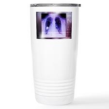 Heart pacemaker, X-ray Travel Mug