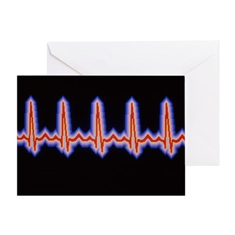 Heartbeat trace Greeting Card