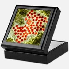 Hepatitis A virus particles, TEM Keepsake Box