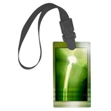 Hip replacement, X-ray Luggage Tag