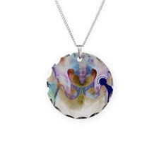 Hip joint replacement, X-ray Necklace