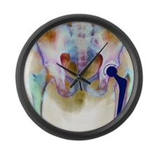 Hip joint replacement, X-ray Large Wall Clock