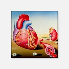 """High blood pressure Square Sticker 3"""" x 3"""""""