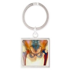 Hip joint replacement, X-ray Square Keychain