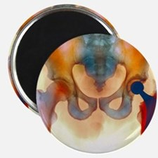 Hip joint replacement, X-ray Magnet