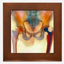 Hip joint replacement, X-ray Framed Tile