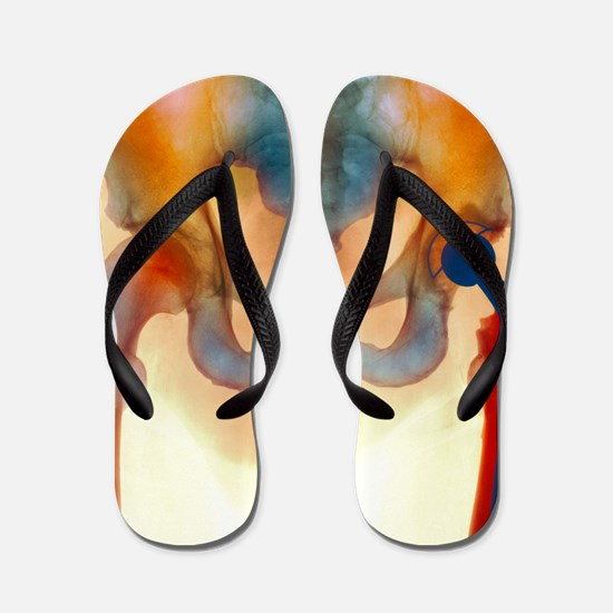 Hip joint replacement, X-ray Flip Flops