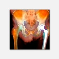 "Hip joint replacement, X-ra Square Sticker 3"" x 3"""