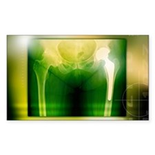Hip replacement, X-ray Decal