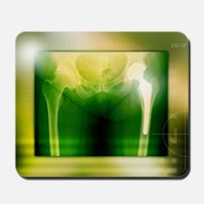 Hip replacement, X-ray Mousepad