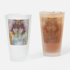 Hip replacement, X-ray Drinking Glass
