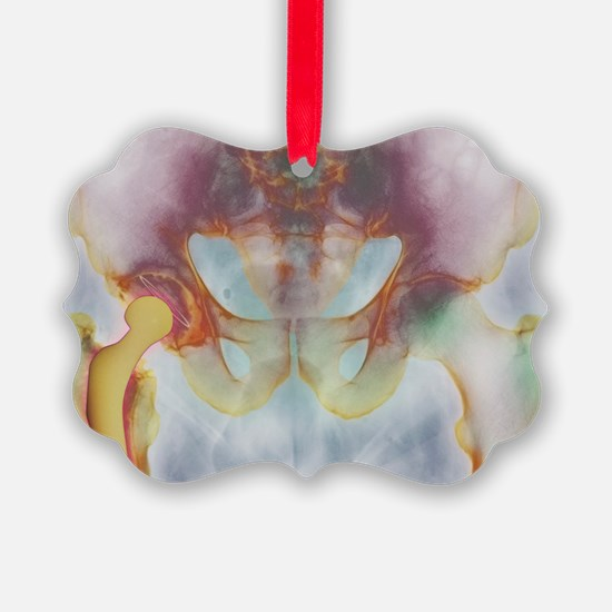 Hip replacement, X-ray Ornament