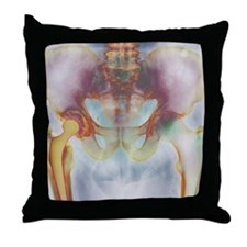 Hip replacement, X-ray Throw Pillow