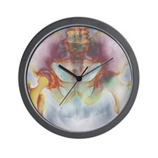 Hip replacement, X-ray Wall Clock