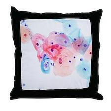 Human papillomavirus infected cells Throw Pillow