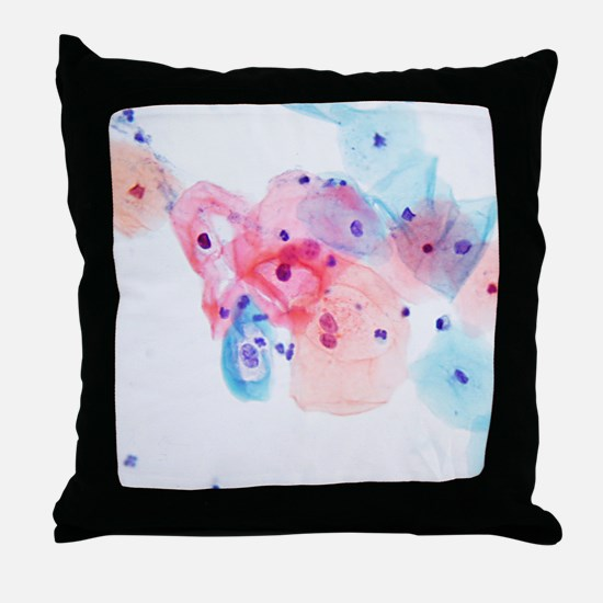 Human papillomavirus infected cells Throw Pillow