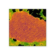"""Human papilloma virus parti Square Sticker 3"""" x 3"""""""