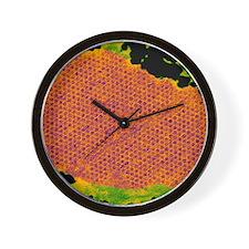 Human papilloma virus particles, TEM Wall Clock