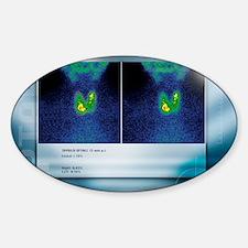 Hypothyroidism, gamma camera scan Decal