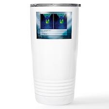 Hypothyroidism, gamma camera sc Travel Mug