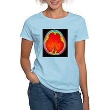Hydrocephalus CT scan T-Shirt