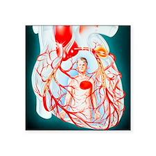 "Illustration of heart showi Square Sticker 3"" x 3"""