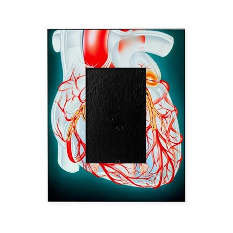 Illustration of heart showing the ca Picture Frame