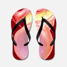 Illustration of an ovarian (follicular) Flip Flops