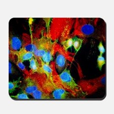 Immunofluorescent LM of HeLa cells in cu Mousepad
