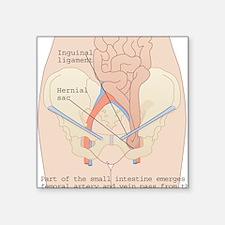 "Inguinal hernia, artwork Square Sticker 3"" x 3"""