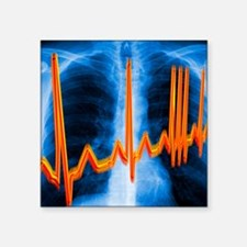 "Irregular heartbeat Square Sticker 3"" x 3"""