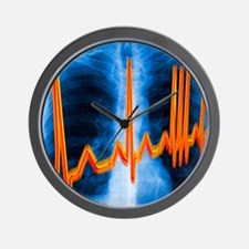 Irregular heartbeat Wall Clock