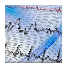 Irregular heartbeat Tile Coaster